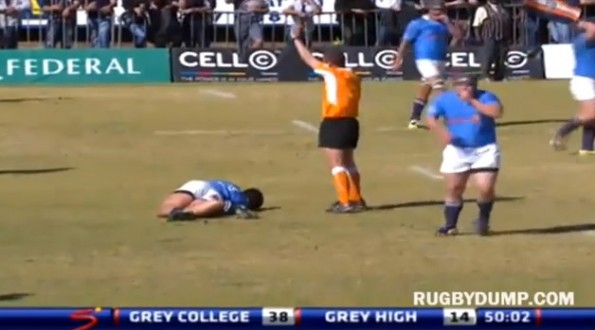 rugby player nasty leg break