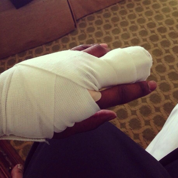 rashad johnson bandaged finger