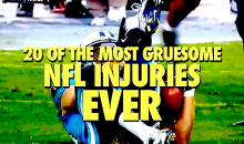 20 of the Most Gruesome NFL Injuries Ever