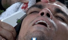 Real Madrid Defender Pepe Receives Nasty Gash, Gets Head Stapled (GIF)