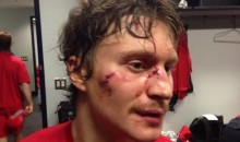 Mikhail Grabovski Gets Accidental Skate to the Face (GIF)