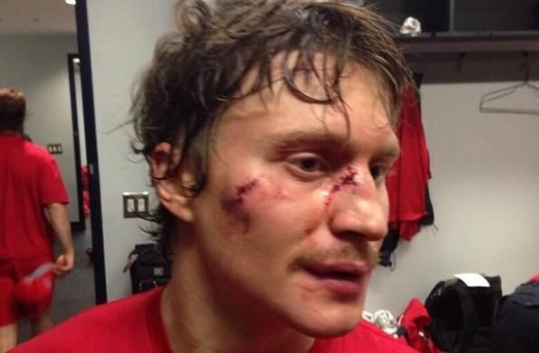 mikhail grabovski skate face stitches