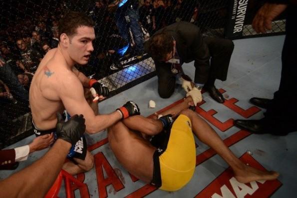 Anderson Silva Leg Break
