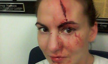 MMA Fighter Kaitlin Young Looks Like Frankenstein's Monster After Gruesome Training Injury (Pics)