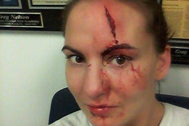 kaitlin young mma nasty gash forehead
