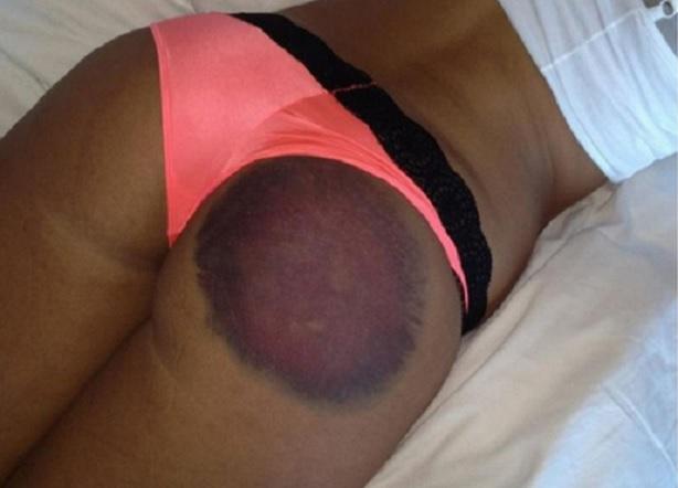 Liz Dickson Playboy golf shot ass cheek bruise