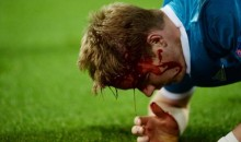 Zenit's Tomas Hubocan Was a Bloody Mess After Knee to the Head From Dortmund's Robert Lewandowski (Pics + Video)