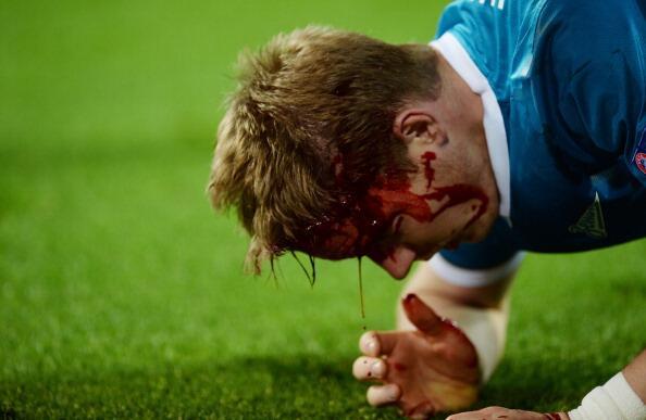 Tomas Hubocan bloody head 2