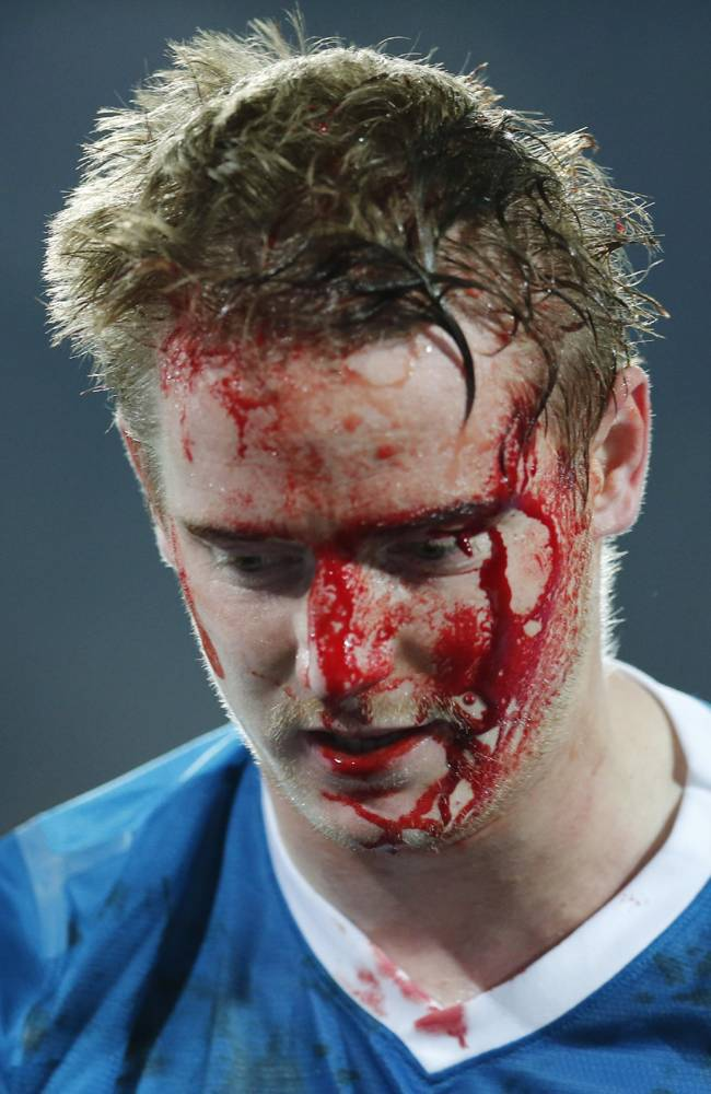 Tomas Hubocan bloody head 3