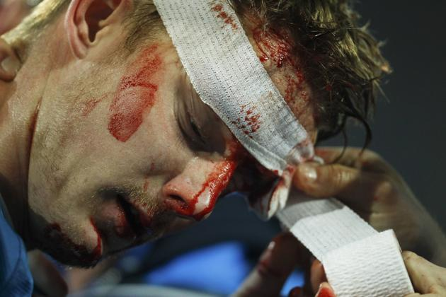 Tomas Hubocan bloody head 4