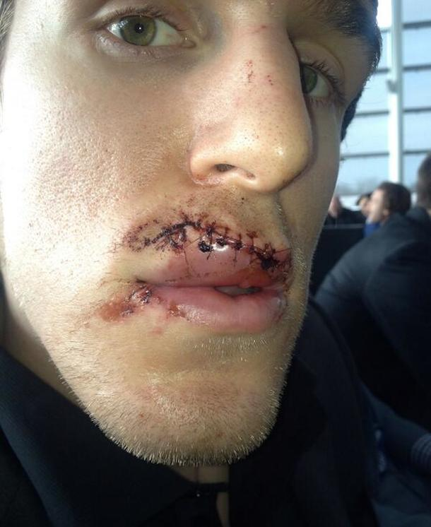 dale weise skate to face 3
