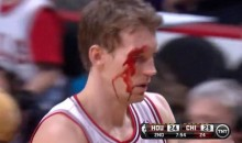 Chicago Bulls' Mike Dunleavy Was a Bloody Mess Last Night (Video + GIF)