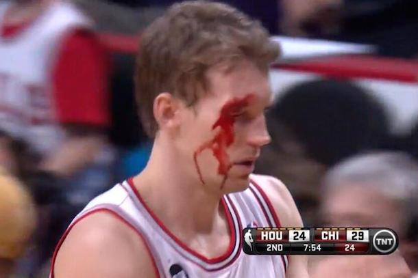mike dunleavy bloody face from chandler parsons