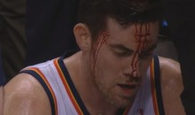 Nick Collison Takes Elbow to the Head , Bleeds Everywhere (Video)