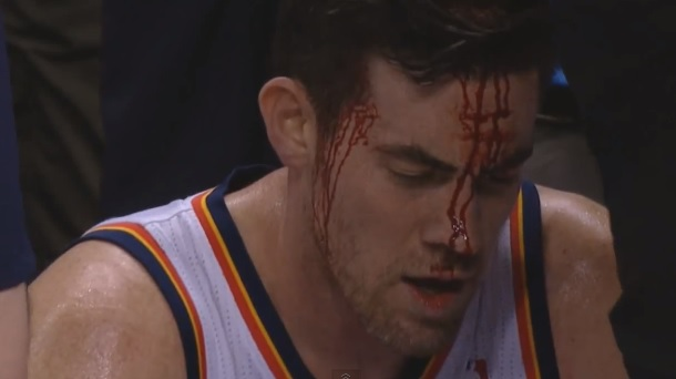 Nick Collison bloody
