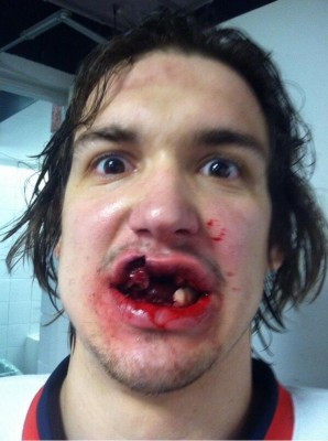 14 Mitch Callahan hockey injury selfie - best sports selfies