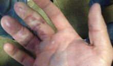 This Gruesome Sight Is What Happens When You Try to Catch a Giancarlo Stanton HR with Your Bare Hands (Pic and Tweet)