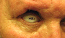 Seahawks Fan Gets Prosthetic Eye with Seahawks Logo on It (Pic)