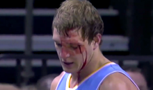 Timofey Mozgov Was a Bloody Mess After Taking an Elbow to the Face (Video)