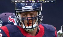 The JJ Watt Bloody Nose is Back and Terrorizing the NFL (Photo)