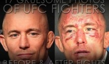17 Gruesome Photos of UFC Fighters Before and After Fights