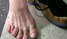 Boxer Danny Garcia Shows the World His Sixth Toe (Pic)