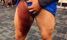 Throwback Thursday: Check Out This JJ Watt Bruise from the Texans' Week 4 Game Against the Bills (Pic)