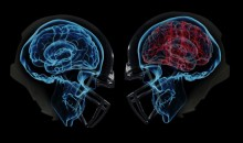 87 Out Of 91 Deceased NFL Players Test Positive for Brain Disease