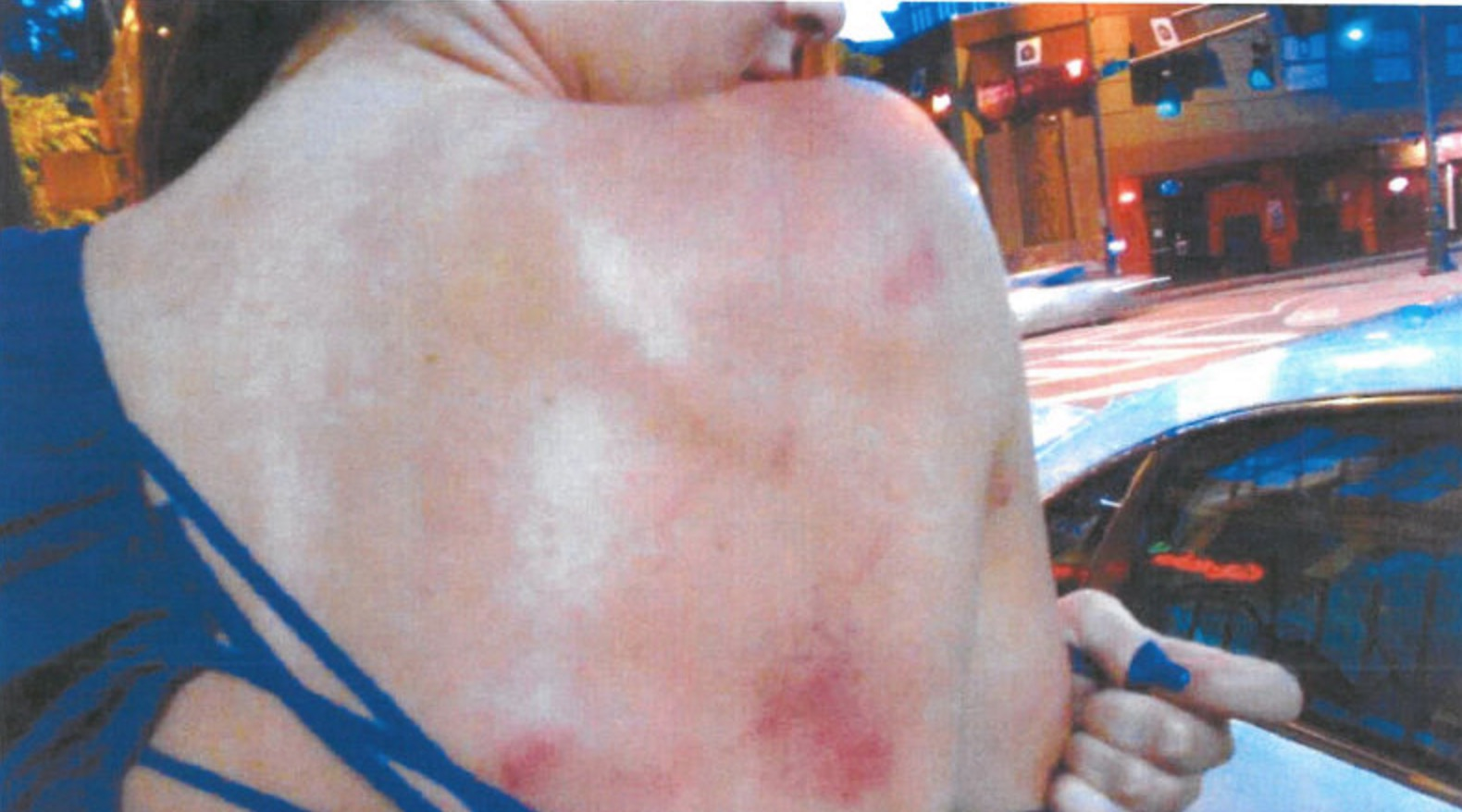 Total Pro Sports Photos Released of the Bruises Greg Hardy