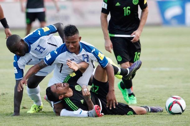 horrifying knee injury honduras luis garrido 0