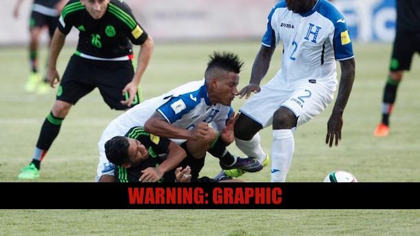 horrifying knee injury honduras luis garrido 2