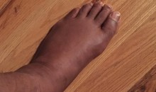 Brandon Marshall Played Despite Having a Giant Swollen Sausage Foot (Pic)