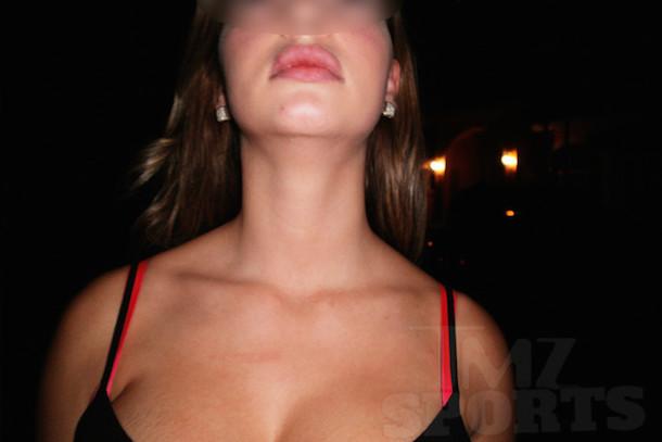 aroldis chapman's girlfriend aroldis chapman domestic violence police photos 2