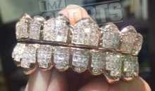 Von Miller Bought a $40,000 Diamond Grill for Some Reason (Pic)
