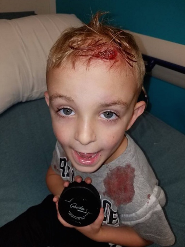 5-year-old hockey fan james evans puck to head er staples 2