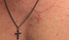 Noah Syndergaard Pitch Hits Catcher in Chest, Brands Him with His Own Necklace (Pic)