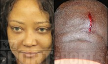 Photos of Lawrence Taylor's Injuries After Wife Assaulted Him (Photos)