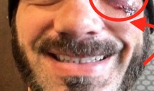 WWE Wrestler Austin Aries Suffered a Pretty Nasty Eye Injury in the Ring (Pic)