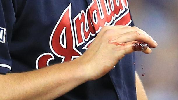 Trevor Bauer Leaves Game Blood Gushing From Finger
