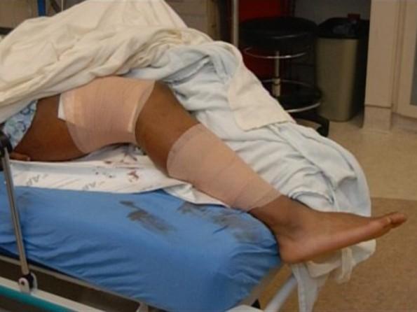 0127-aqib-talib-gunshot-wounds-3