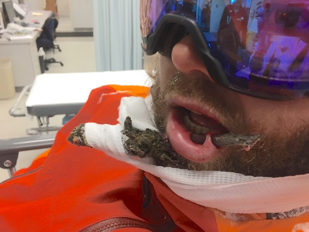 ski instructor face impaled by tree branch