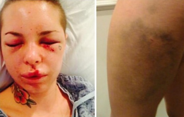 war machine christy mack injuries