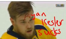 Social Media Had Some Fun With Viktor Arvidsson's 'R'-Shaped Blood Stain (TWEETS)