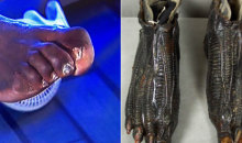 Social Media Reacts to to Shaq's Deformed Rated-R Looking Feet (TWEETS)