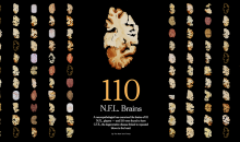 Recent Study Finds CTE In 99 Percent of Deceased NFL Players