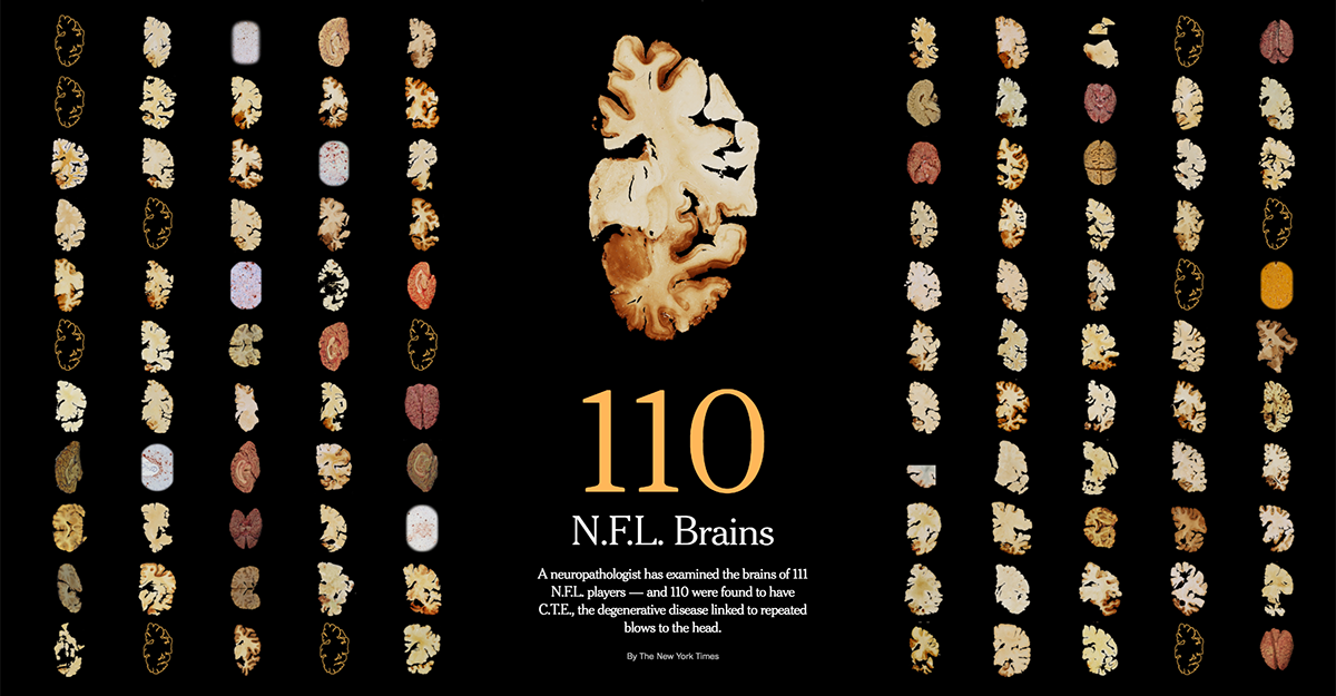 Contact sports linked to progressive disease CTE