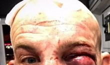 Patrick Cummins Shares Selfie of His Mutilated Face After UFC Victory (PIC)