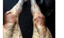 Tour de France Rider Pawel Poljanski Shares Unbelievable Photo Of Vascular Legs