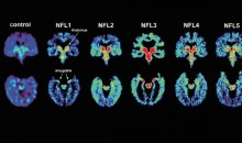 BREAKING: Scientists Confirm CTE Has Been Found in Living NFL Player for the First Time