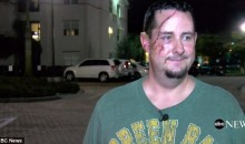 Green Bay Packers Fan Needed 41 Stitches After Being Attacked By Actual Bear In Florida (VIDEO)